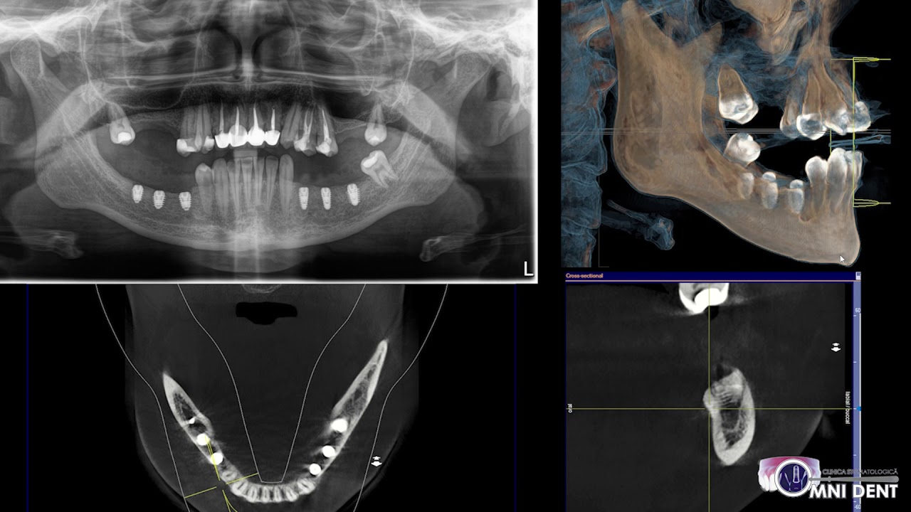 Rehabilitation of patient with severe atrophy in posterior region of mandible class C-h Mich